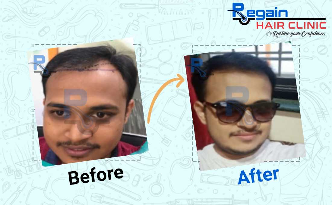 regain-success-stories-4